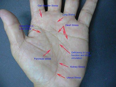 Medical Palmistry